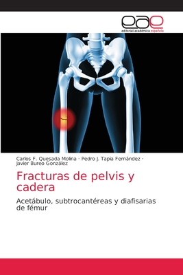 Fracturas de pelvis y cadera Cover Image
