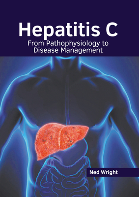 Hepatitis C: From Pathophysiology to Disease Management Cover Image