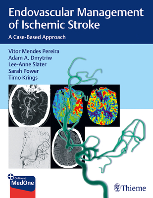 Endovascular Management of Ischemic Stroke: A Case-Based Approach Cover Image