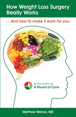 How Weight Loss Surgery Really Works: And How to Make it Work for You Cover Image