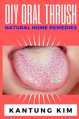 DIY Oral Thrush Natural Home Remedies: The Effective Step By Step Guide To Permanently End Oral Thrush Cover Image