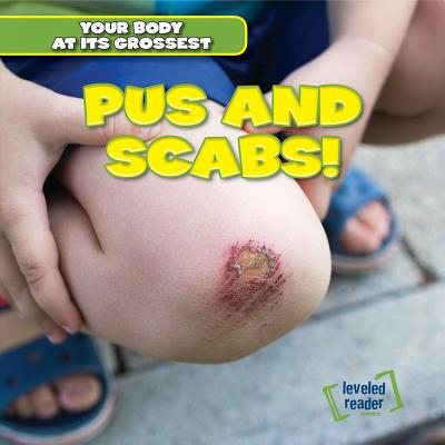 Pus and Scabs! (Your Body at Its Grossest) Cover Image