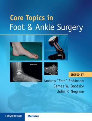 Core Topics in Foot and Ankle Surgery Cover Image