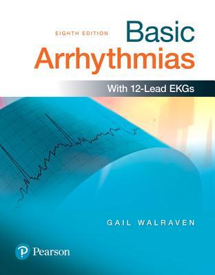 Basic Arrhythmias Cover Image