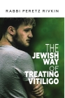 The Jewish Way of Treating Vitiligo Cover Image