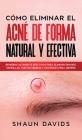 Cómo Eliminar el Acné de Forma Natural y Efectiva: Remedios altamente efectivos para eliminar granos, espinillas, puntos negros y cicatrices para siem Cover Image