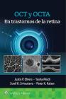 OCT y OCTA en trastornos de la retina Cover Image