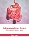 Inflammatory Bowel Disease: Clinical Gastroenterology Cover Image