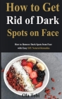 How to Get Rid of Dark Spots on Face: How to Remove Dark Spots from Face with Easy DIY Natural Remedies Cover Image