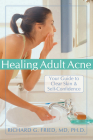 Healing Adult Acne: Your Guide to Clear Skin and Self-Confidence Cover Image