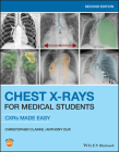 Chest X-Rays for Medical Students: Cxrs Made Easy Cover Image