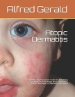 Atopic Dermatitis: The Ultimate Therapeutic Guide On Everything You Need To Know About Atopic Dermatitis, Causes And How To Effectively T Cover Image