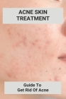 Acne Skin Treatment: Guide To Get Rid Of Acne: Hormonal Acne Cover Image