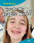 How Do My Braces Work?: Teeth Cover Image