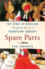 Spare Parts: The Story of Medicine Through the History of Transplant Surgery Cover Image