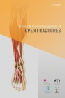 Standards for the Management of Open Fractures Cover Image