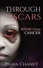 Through the Scars: Rising from Cancer Cover Image