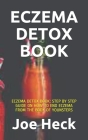 Eczema Detox Book: Eczema Detox Book: Step by Step Guide on How to End Eczema from the Body of Younsters Cover Image