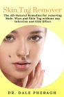 Skin Tag Remover: The All-Natural Remedies for removing Mole, Wart and Skin Tag without any Infection and Side Effect Cover Image