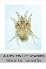 A Review Of Scabies_ Definition And Treatment Tips: Scabies Treatment Guide Book Cover Image