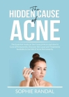 The Hidden Cause of Acne: The Essential Guide on the Cause of Acne and How to Cure it Permanently, Discover the Cause and Treatments Available t Cover Image