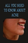 All you need to know about acne: causes and treatments of acne stages solutions natural remedies Cover Image