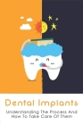Dental Implants: Understanding The Process And How To Take Care Of Them: Types Of Dental Implants Cover Image
