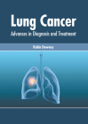 Lung Cancer: Advances in Diagnosis and Treatment Cover Image