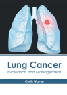Lung Cancer: Evaluation and Management Cover Image