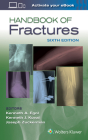 Handbook of Fractures Cover Image