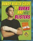 Handy Health Guide to Burns and Blisters (Handy Health Guides) Cover Image