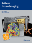 Radcases Neuro Imaging Cover Image