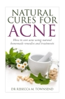 Natural cures for acne: How to cure acne using natural homemade remedies and treatments Cover Image