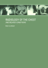 Radiology of the Chest and Related Conditions Cover Image