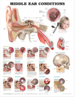 Middle Ear Conditions Anatomical Chart  Cover Image