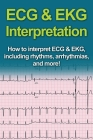 ECG & EKG Interpretation: How to interpret ECG & EKG, including rhythms, arrhythmias, and more! Cover Image